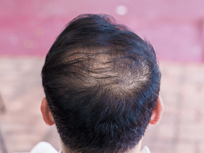 best shampoos for thinning hair